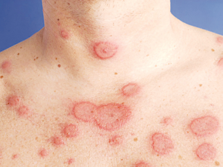 Dấu hiệu của bệnh Lupus