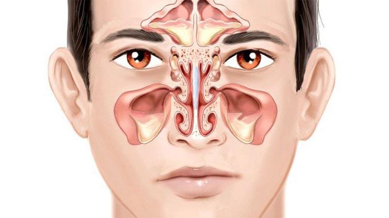 nhiễm trùng xoang mãn tính có thể là dấu hiệu của một hệ miễn dịch suy giảm